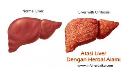 Cara Mengolah Temulawak Untuk Obat Liver