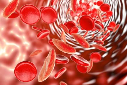 Obat Anemia Paling Aman Dan Ampuh