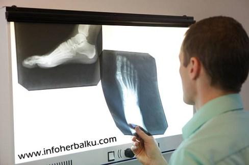 Obat Patah Tulang Tersedia Di Apotik
