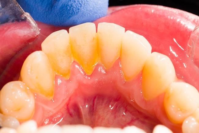 menghilangkankarang gigi secara alami