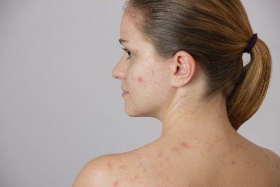 Cara Mengobati Herpes Dengan Propolis