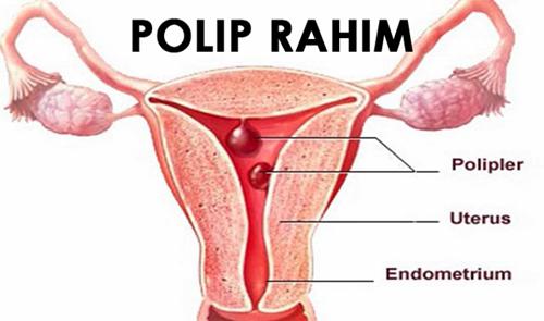 Obat Polip Rahim Herbal