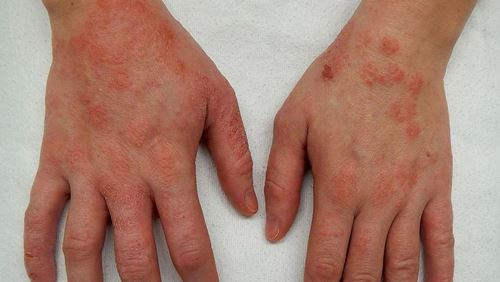Penyakit Dermatitis – Penyebab, Gejala, dan Bahayanya
