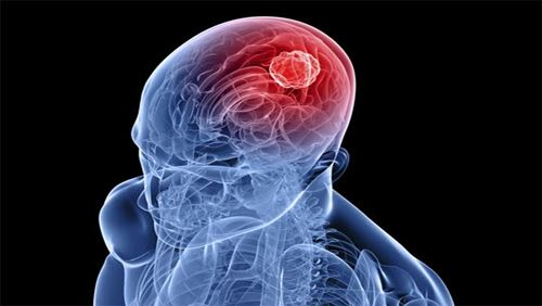 Kanker Otak – Penyebab, Gejala, dan Bahayanya