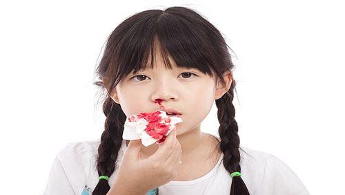 Kanker Nasofaring – Penyebab, Gejala, dan Bahayanya