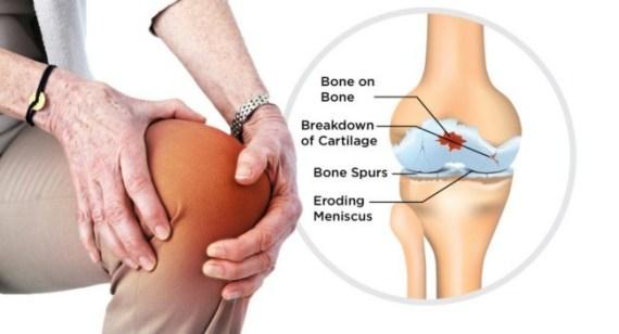 cara mengobati lutut berbunyi krek