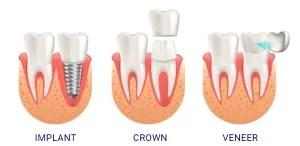 DentalImplants_vs_Crowns_VS_Veneers-e1589609843348