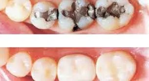 Composite_White_Fillings