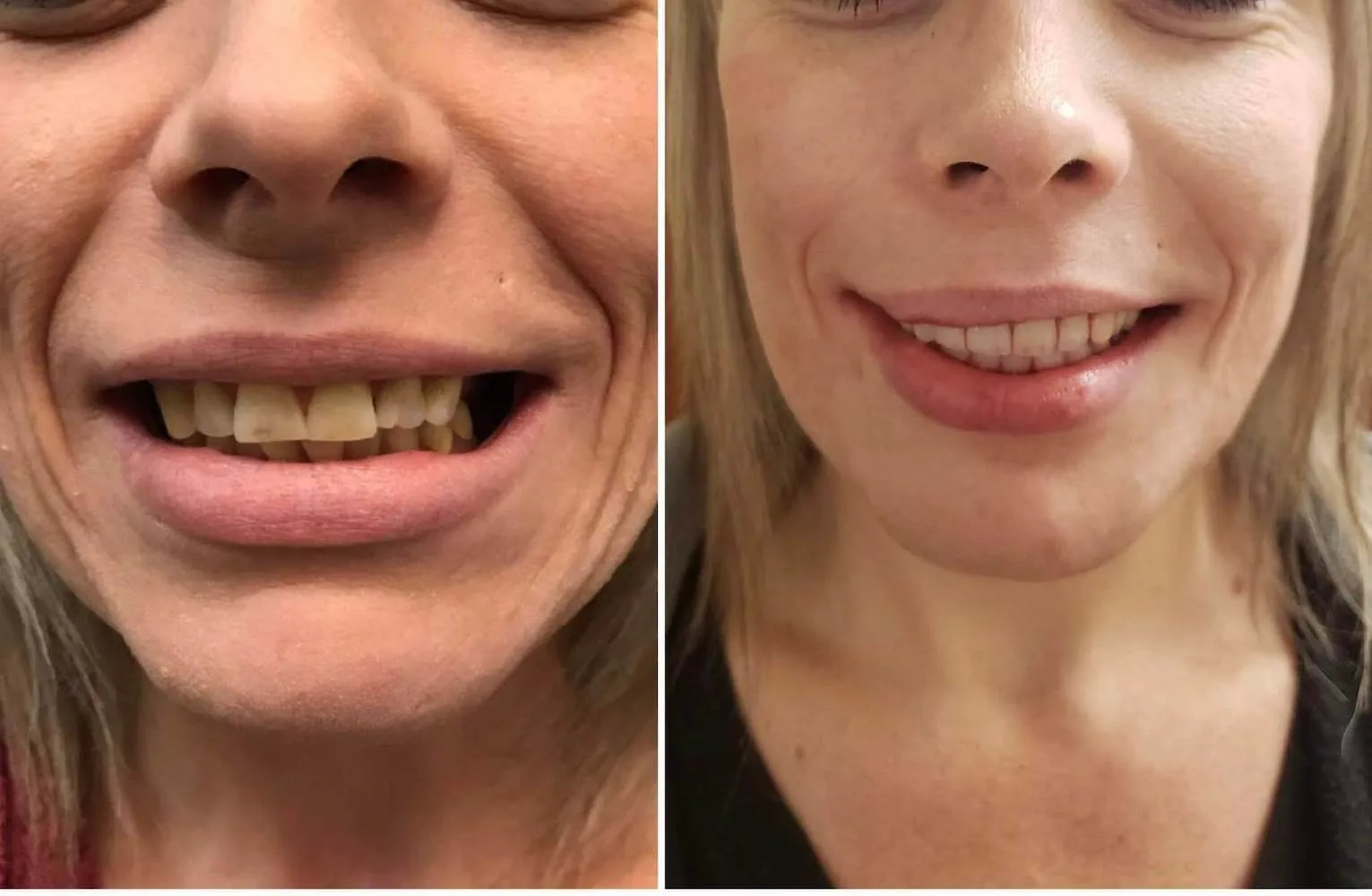 Before-and-After-photo-springville-dentistry-blonde-female copy 2