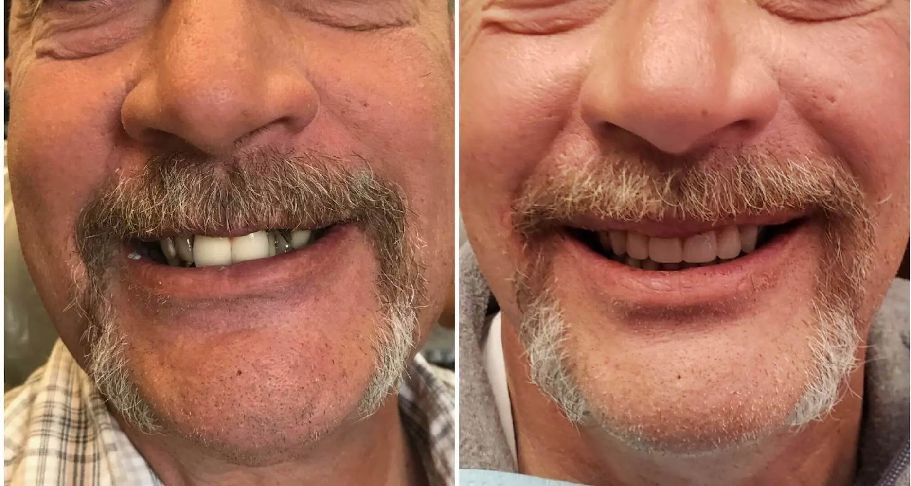 Before-and-after-springville_dentistry-payson-ut-bearded-male-better-smiles copy