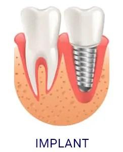 DentalImplant-e1589609678128