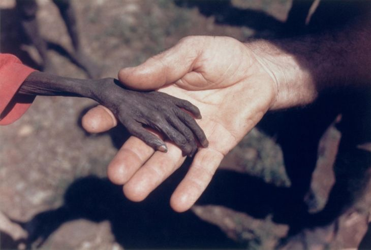 A starving boy and a missionary in Uganda, 1980.
