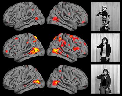 Brain activity images