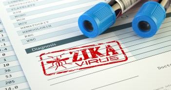 Zika virus research features