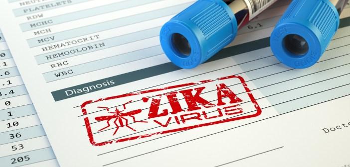 Zika virus research features