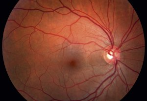 retinal oedema