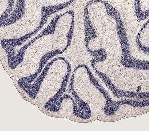 selenoproteins