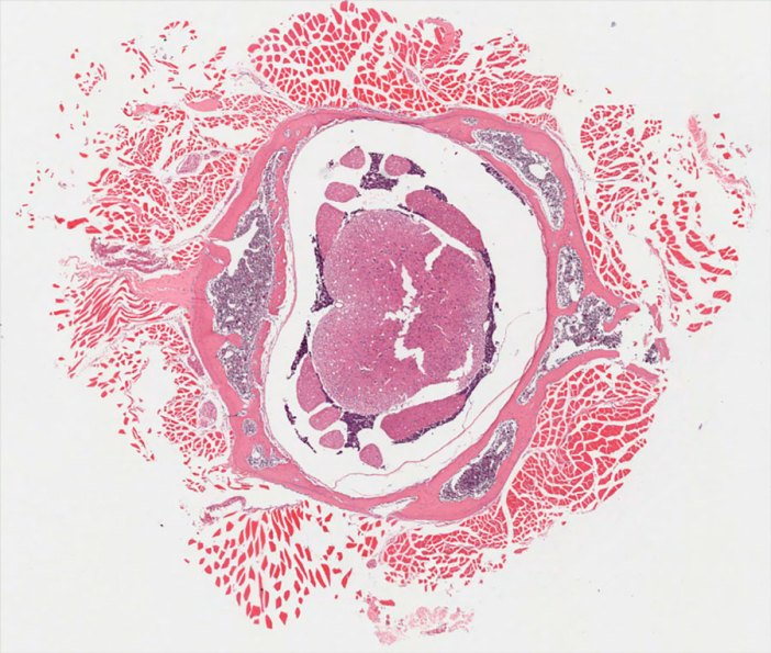human medulloblastoma