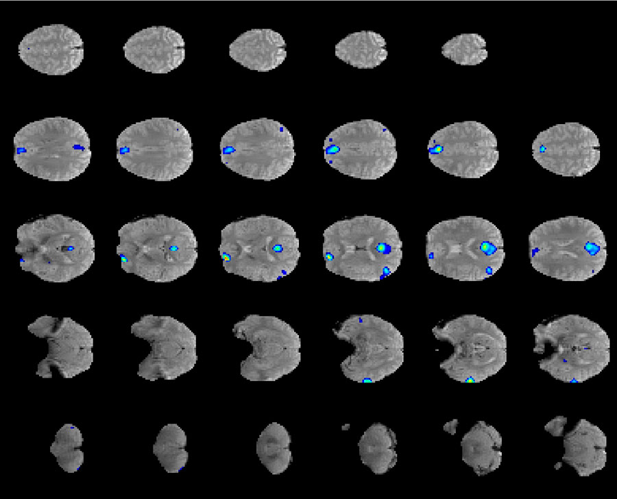 Signal detection in functional Magnetic Resonance Imaging