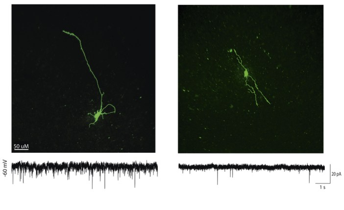 Dye filled neurons after electrophysiological recording
