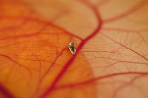 microbot on retina