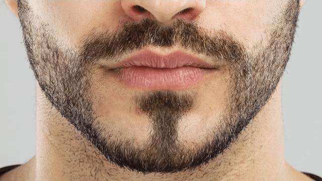 Cara Menghilangkan Kumis Dan Jenggot Secara Permanen Pada Pria