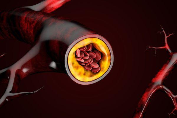 Des injections 2 fois par an contre le mauvais cholestérol