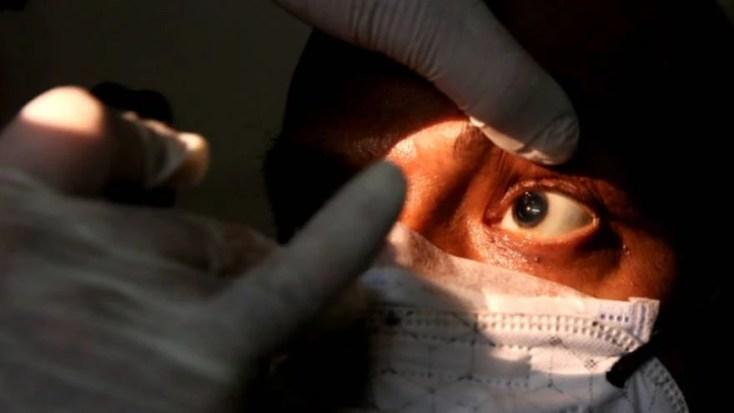 """Murió el primer paciente con """"hongo negro"""" en Argentina"""