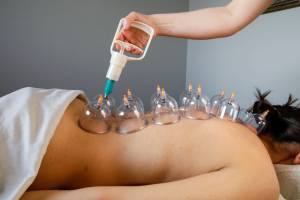 photo of therapist creating suction in glass massage cups with an apparatus