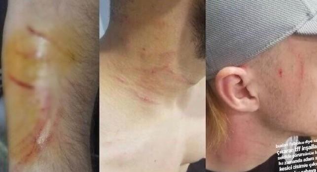 Risultati immagini per Follia in Turchia: in campo con una lametta, ferisce gli avversari