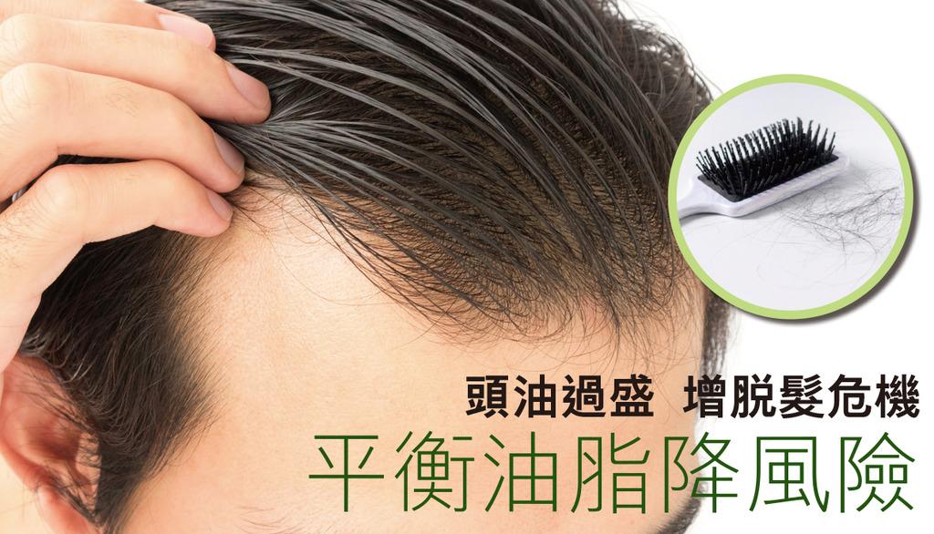 「頭油過盛增脫髮危機 平衡油脂降風險」 - 晴報 - 生活訊息 - D190620