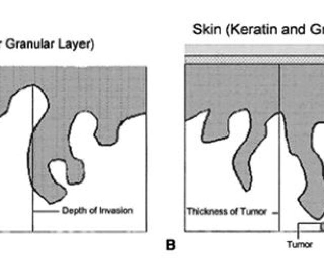 Figure 11 Measurement Methods Of Squamous Cell Carcinoma Of The Vulva Depth Of Invasion Is Defined As The Distance From The Epithelial Stromal Junction Of