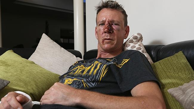Positive thinking: Glen Colless recuperates at home after suffering a fractured cheekbone