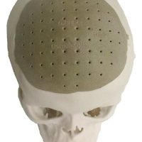 Get 75% of Your Skull Back w/ 3D-Printed Prosthetic!