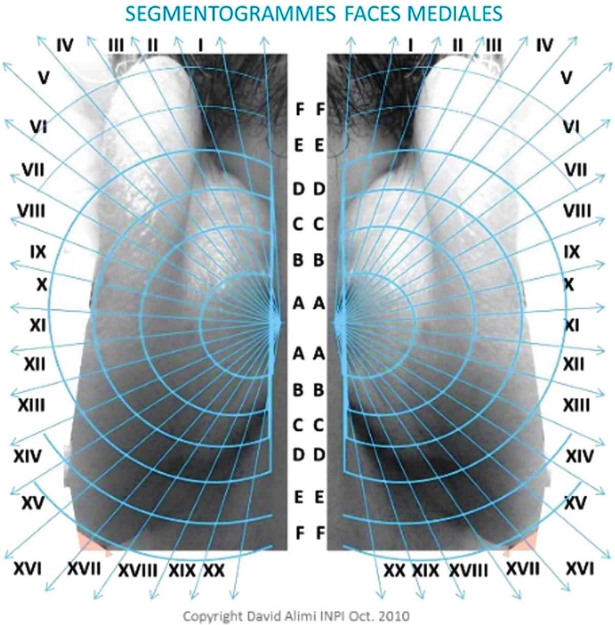 Auricular acupuncture homunculus 4