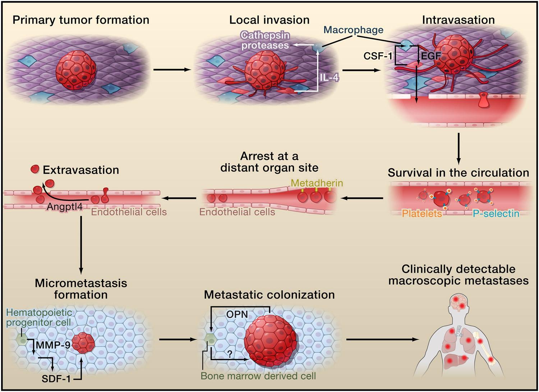 Metastasis