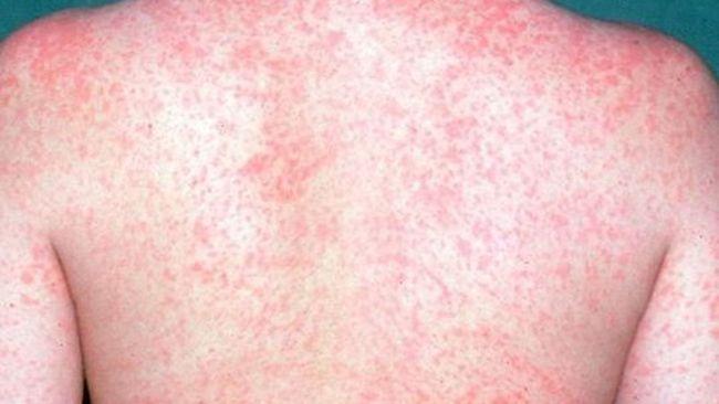 Measles is back in Oakland County