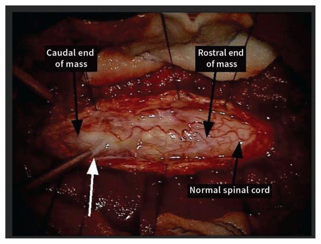 Olfactory mucosa tumor