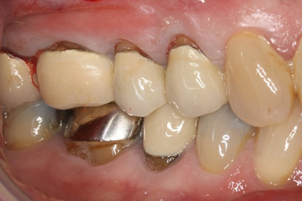 old-crowns-with-ugly-margins-showing