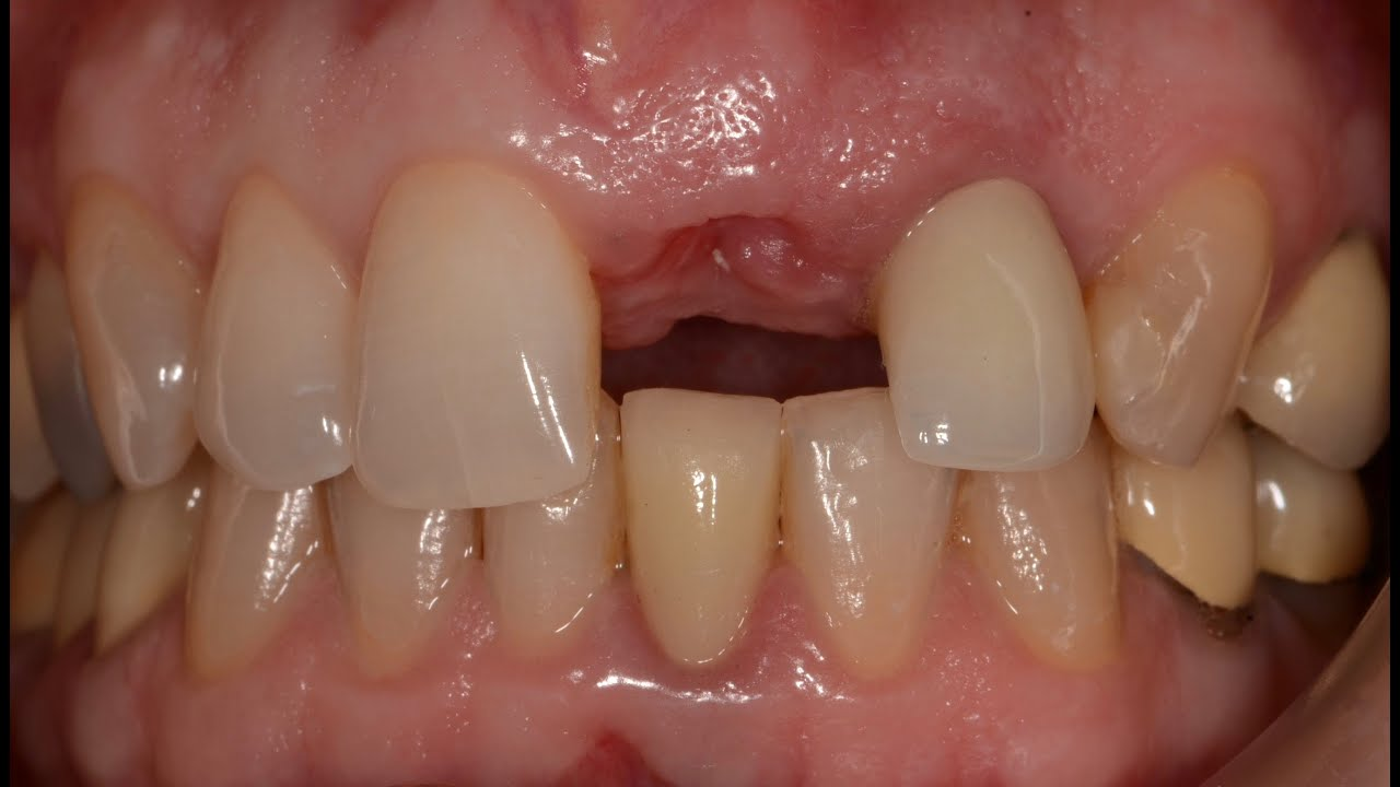 Rationale For Socket Preservation After Extraction Of A Single Rooted Tooth When Planning For Future Implant Placement By Irinakis Key Topics In Restorative Dentistry
