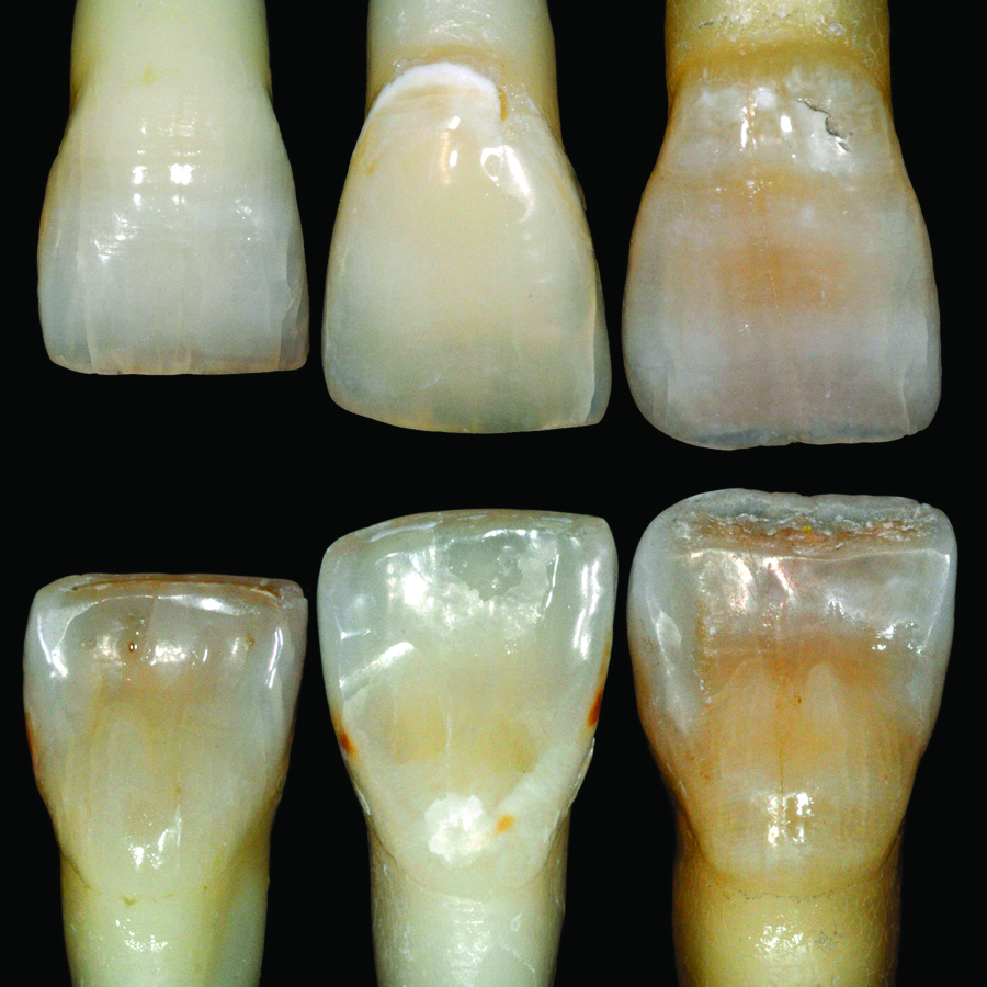 Clinical performance of direct composite resin restorations in a full mouth rehabilitation for patients with severe tooth wear: 5.5-year results by Mehta et al.