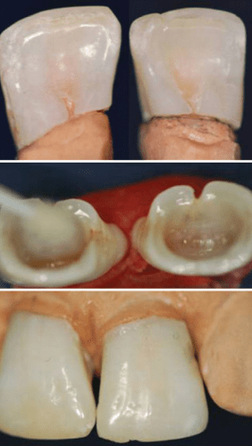 """Biological Restoration"": Root Canal and Coronal Reconstruction by Correa-Faria et al."