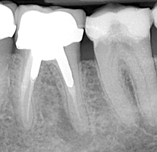 Treatment planning for the heavily compromised tooth by Stephen Franks
