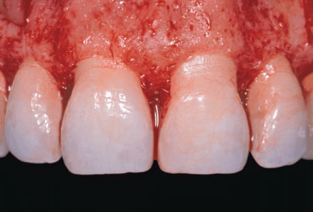 Aesthetic crown lengthening: Classification, biologic rationale, and treatment planning considerations by Lee et al.