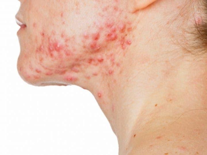 Resultado de la imagen para Enfermedades autoinmunes