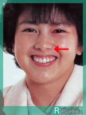 沢口靖子 若い頃 ほくろ