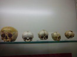 Cráneos infantiles. Museo Reverte Coma (UCM). Foto: Marta Menacho.