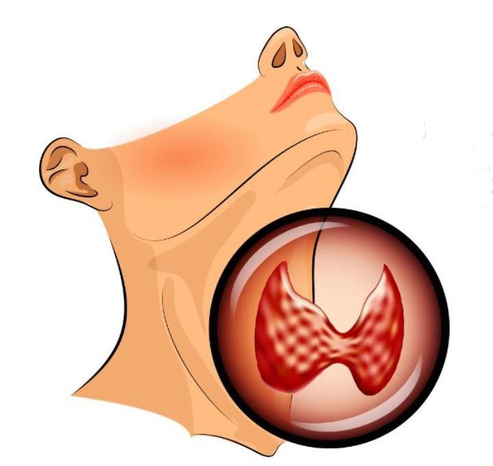 Sucul Care vă va Ajuta să Pierdeți în Greutate, Reglementa glanda Tiroida, și Lupta Împotriva Inflamației.