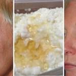 Botoxul se odihnește! Nu credeam că efectul va fi atât de vizibil.…