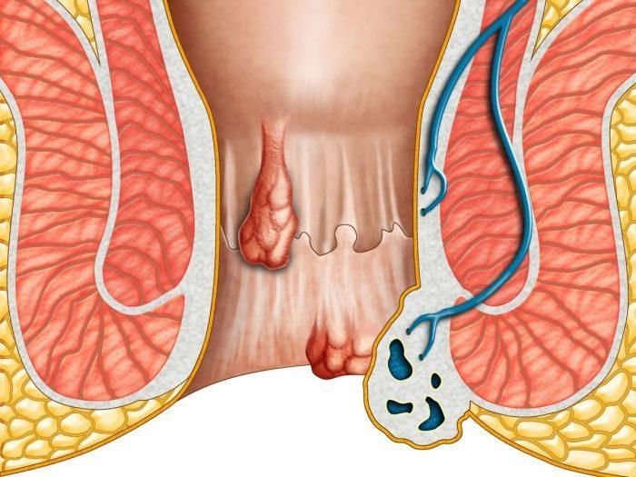 Cum de a ușura starea cu hemoroizi? Sfaturi utile